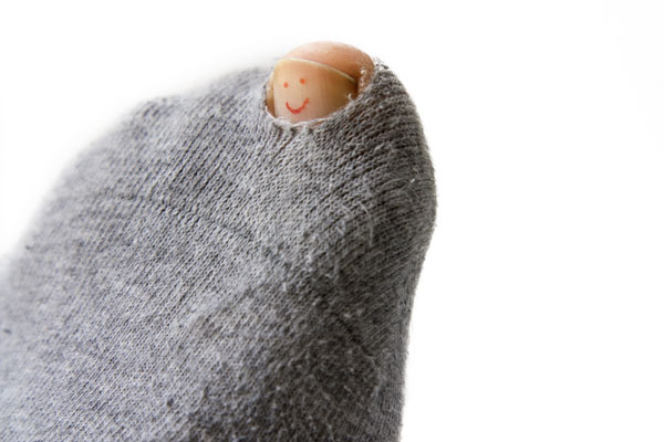 Sock with hole